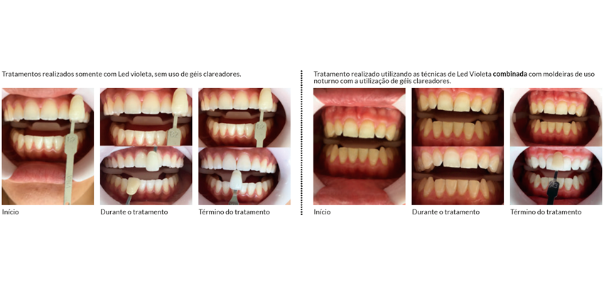 Clareamento Dental Com Led Violeta Revista Saude Maringa Pr