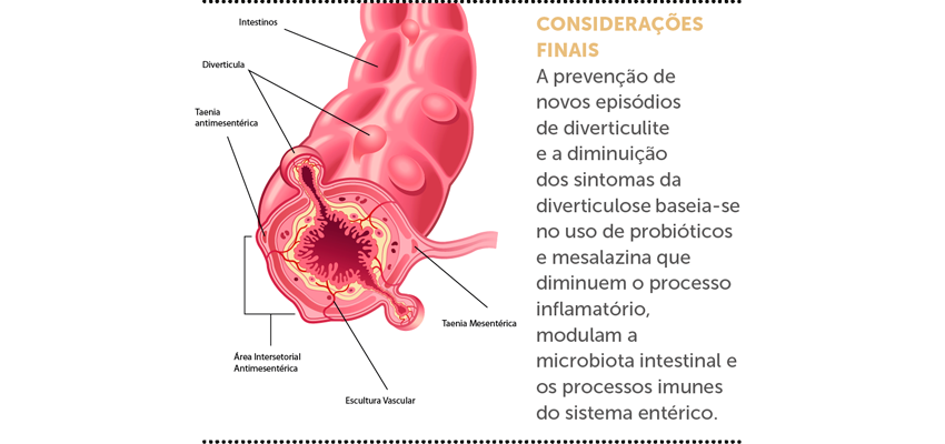 DOENÇA DIVERTICULAR DO INTESTINO GROSSO