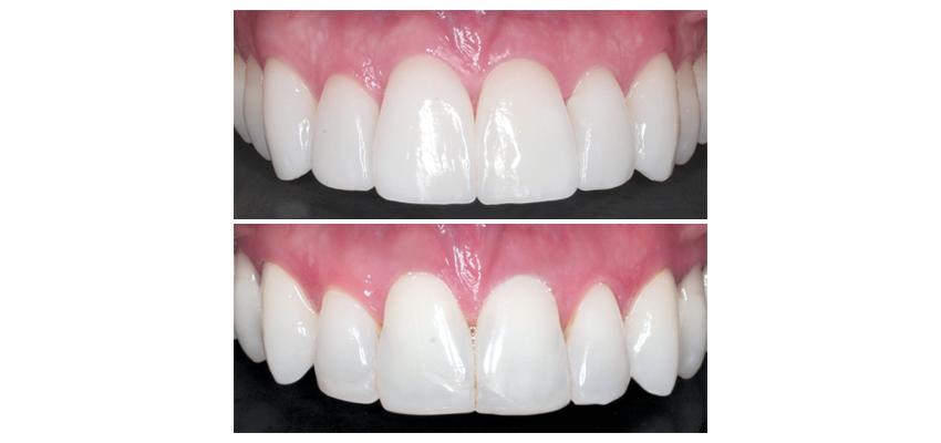 Facetas e Façanhas  Facetas de porcelana e lentes de contato dentárias 3a4c165a83
