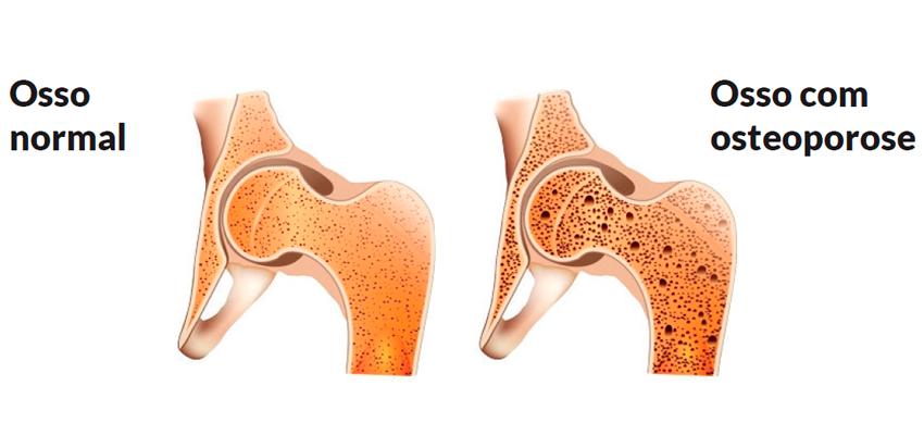 Resultado de imagem para osteoporose