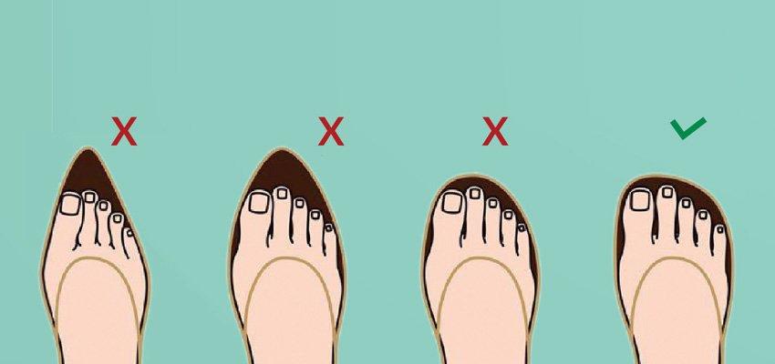 8c806478dc Resultado de imagem para qual o melhor tipo de sapato para quem tem joanete