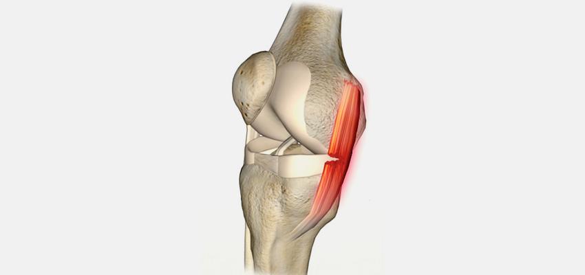 A Lesão do Ligamento Colateral Medial do Joelho
