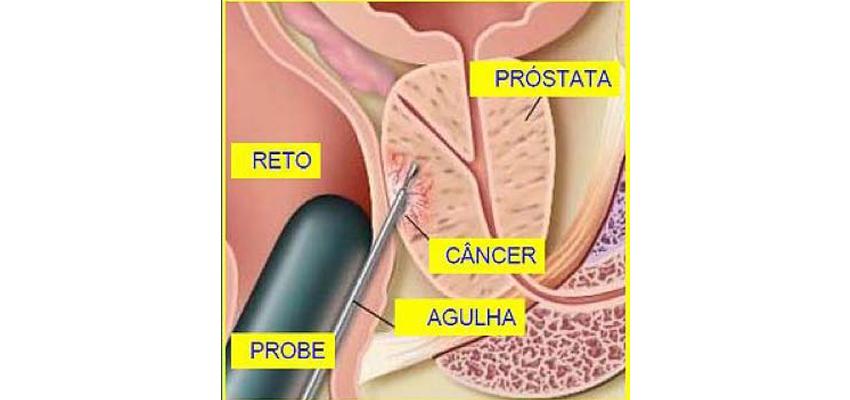 biopsia de próstata con imagen de imagenes