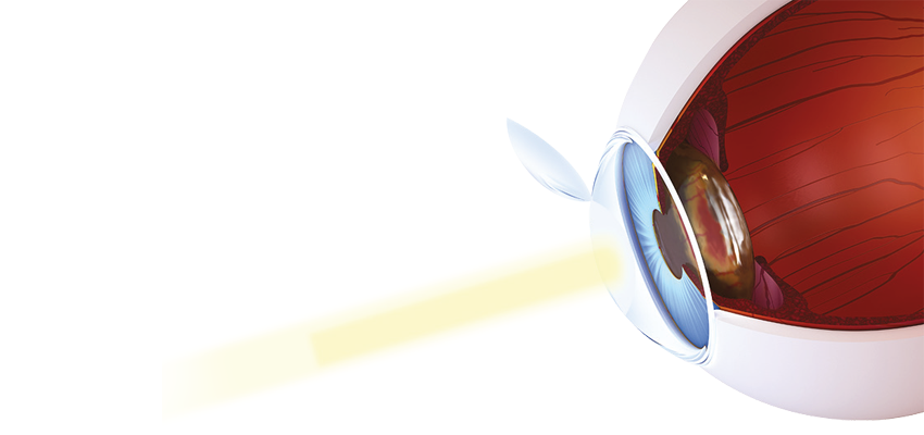 f3a78af32 Cirurgia a laser para miopia, hipermetropia e astigmatismo