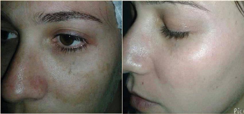 Melasma melhor tratar laser para