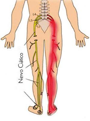 O que é Dor Ciática (Ciatalgia)