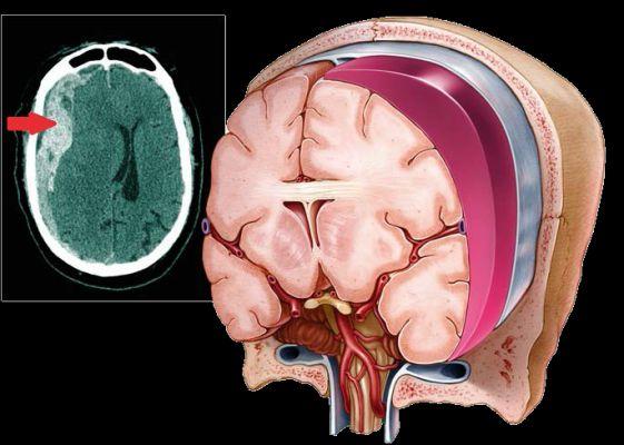 causas de hematoma subdural em idosos
